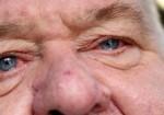 oči choroby